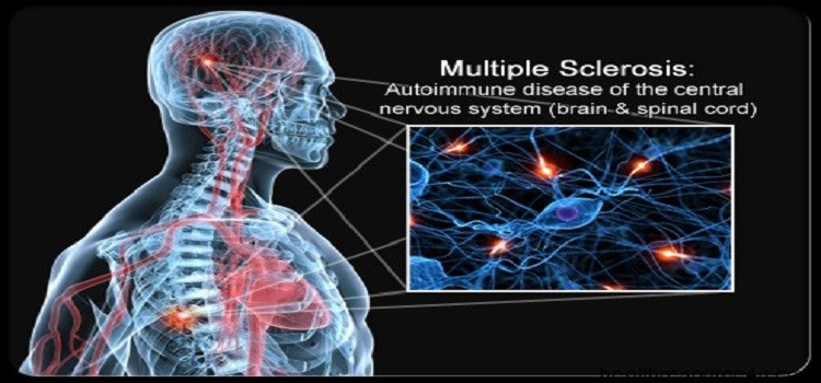 an overview of the disease of the nervous system multiple sclerosis A javed, bgw arnason, in encyclopedia of neuroscience, 2009 the demyelinating diseases are common neurological disorders that affect the central nervous system (cns) and peripheral nervous system they cause substantial disability and some are associated with a high mortality rate if not treated promptly cns demyelinating diseases discussed in this article include multiple sclerosis.